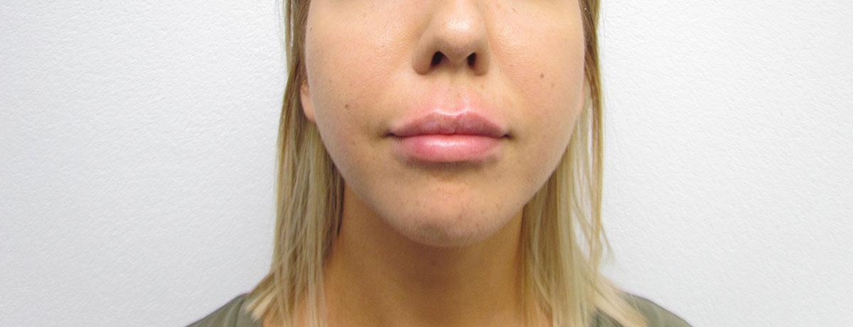 After-Powiększenie ust