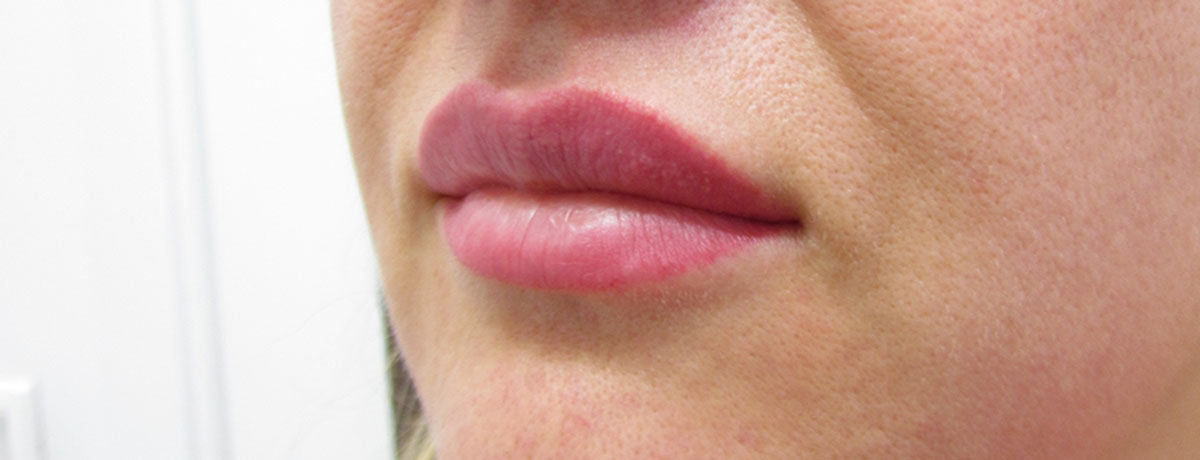 Before-Powiększenie ust