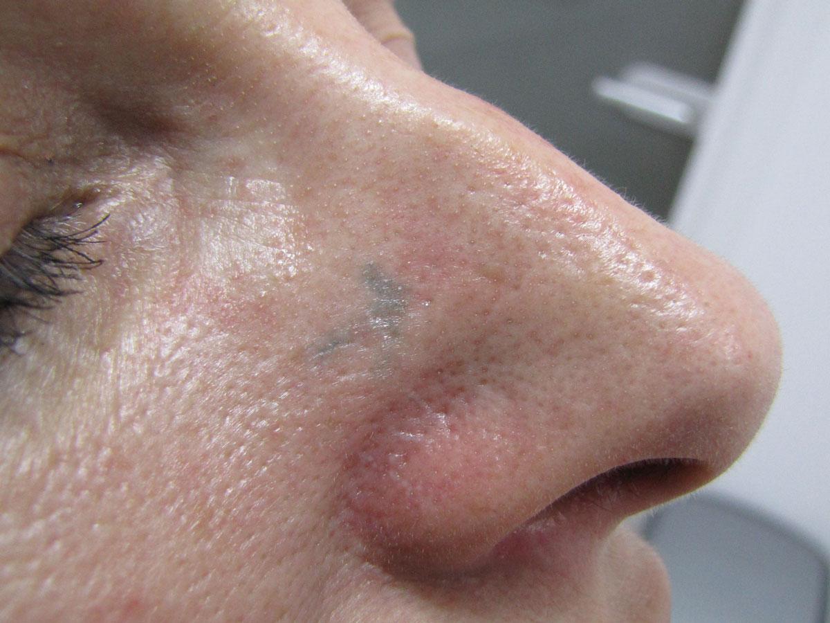 After-Laser naczyniowy