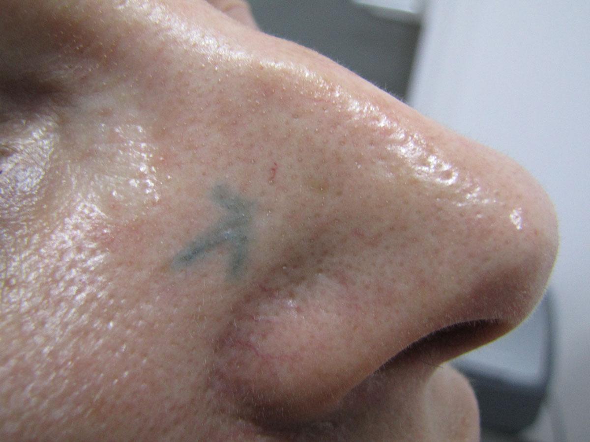 Before-Laser naczyniowy