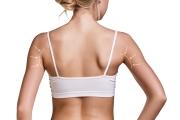 liposonix-ramiona